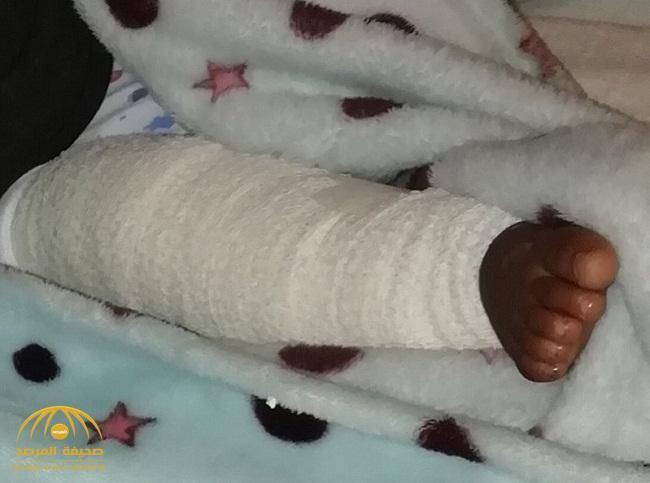 صحة بيشة تفجر مفاجأة في نتائج التحقيق بشأن تعرض طفل لقطع بأربطة الركبة