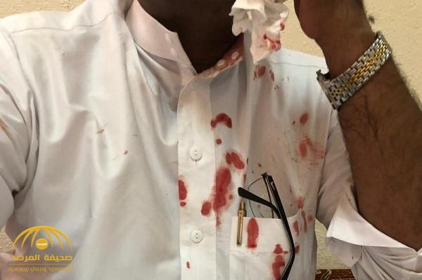 مواطن يعتدي على وكيل مدرسة بالطائف ويطعنه في وجهه