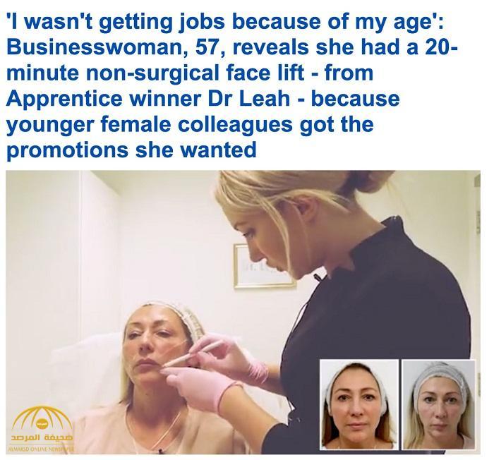 شاهد: عملية تجميل جديدة في بريطانيا لشد وجه امرأة خمسينية في 20 دقيقة فقط!