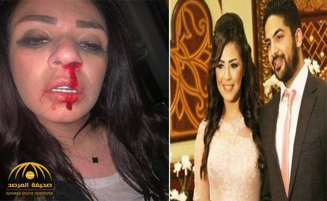 """شاهد.. الفنانة المصرية """" شاهيناز """" تنشر صور لها بعد اعتداء طليقها  عليها بالضرب.. وتكشف السبب!"""