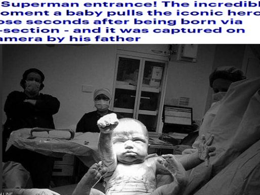 """ولادة سوبرمان.. صورة مذهلة لأولى لحظات """"الطفل الخارق"""" .. شاهد كيف أصبح شكله الآن"""