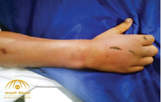 جريمة بشعة.. مقتل شاب تعرض للتعذيب والحرق على يد مواطن في جدة.. ووالدته تكشف تفاصيل اللحظات الأخيرة!