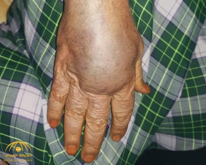 """""""حقنة"""" في مستوصف حكومي بجازان تحوّل يد مسنّ إلى هذه الحالة.. """"ضع ثلجًا"""" (صورة)"""