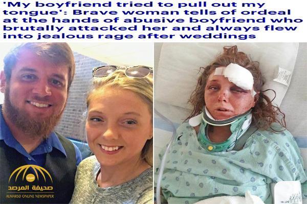 أمريكي يقطع لسان صديقته وكاد أن يقتلها بسبب الغيرة ! – صور