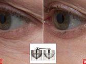تعرف على منتج جديد للتخلص من علامات التقدم في السن المزعجة!