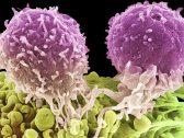 """باحثون يكشفون عن """"وقود السرطان"""" .. وهكذا يمكن تجويع خلاياه حتى الموت """"بخطوة واحدة"""""""