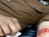 خلال مداهمة وكر بجازان.. مهرب يباغت رجل أمن بـ7 طعنات والكشف عن حالته الصحية (صورة)