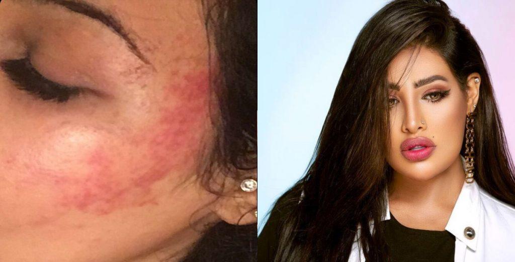 """الإعلامية السعودية """"روزانا اليامي"""" تتعرض لحادث وتنشر صور تكشف مدى إصابتها"""
