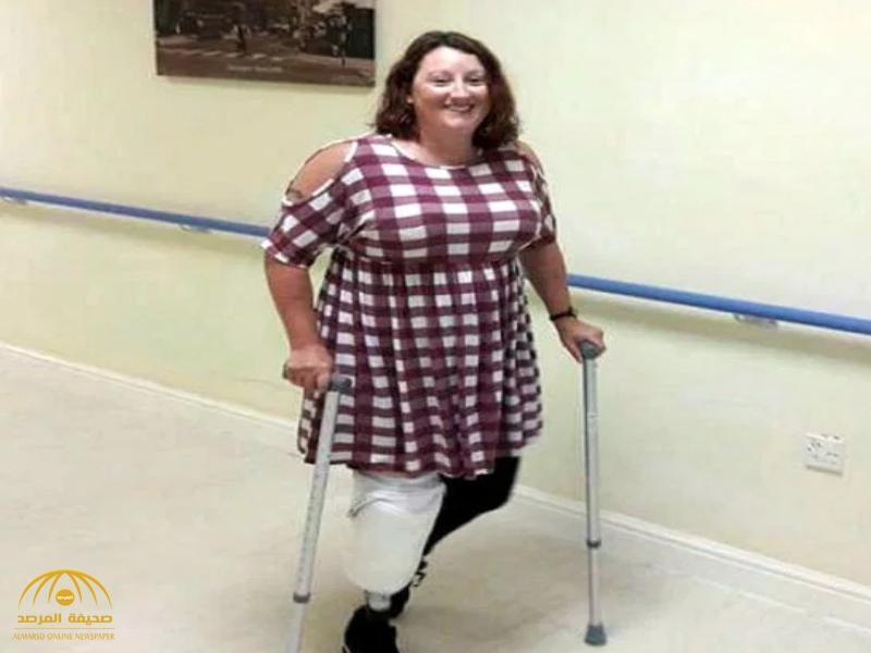 امرأة تتوسل الجراحين لبتر ساقها بسبب زجاجة عطر!