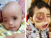 """أُصيب بورم خبيث جعل شكل عينه مرعبًا.. شاهد: هكذا أصبح الطفل اليمني """"رواف"""" بعد علاجه على نفقة ولي العهد"""