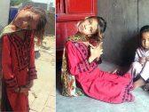 شاهد : فتاة باكستانية تعيش برقبة غريبة !