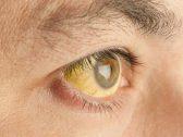 """""""اصفرار العين"""".. مؤشر للإصابة بأمراض خطيرة"""