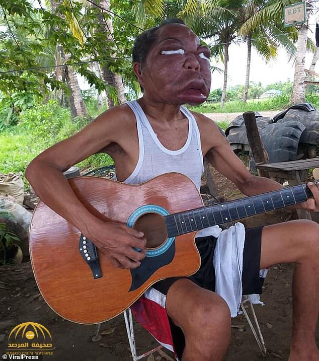 «اعتقد أنه مصاب بالجيوب الأنفية ».. شاهد ماذا فعل مرض غامض في وجه رجل فلبيني؟