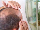 خبراء بريطانيون يحذرون : عقار شائع لعلاج الصلع يسبب العقم -صورة