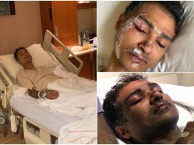 """شقيق المواطن المُعتدى عليه في ماليزيا يكشف للمرصد ملابسات الحادث.. أردني """"شتمنا  وشرَّح وجه أخي بالزجاج""""!"""