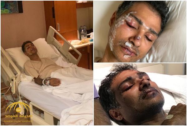 """شقيق المواطن المُعتدى عليه في ماليزيا يكشف للمرصد ملابسات الحادث.. أردني """"شتمنا وشرَّح وجه أخي بالزجاج""""! • صحيفة المرصد"""