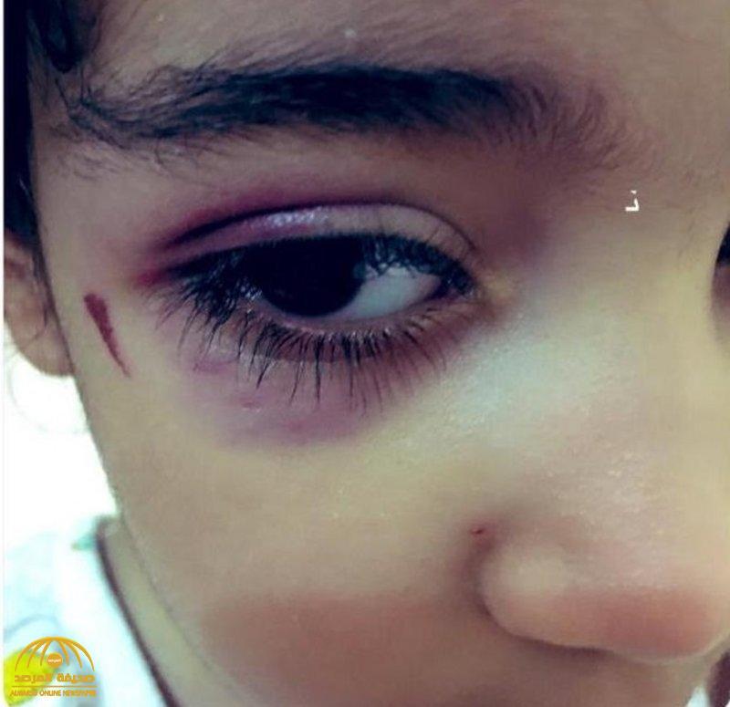 بعد إصابة طفلة في عينها بجدة  .. مالك الروضة  يكشف ما حدث وهذا ما طلبته والدتها قبل الحادث !