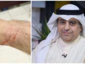 بالصور : الإعلامي ماضي الخميس يتهم الشرطة الكويتية باختطافه والاعتداء عليه .. ومفاجأة قبل إطلاق سراحه !