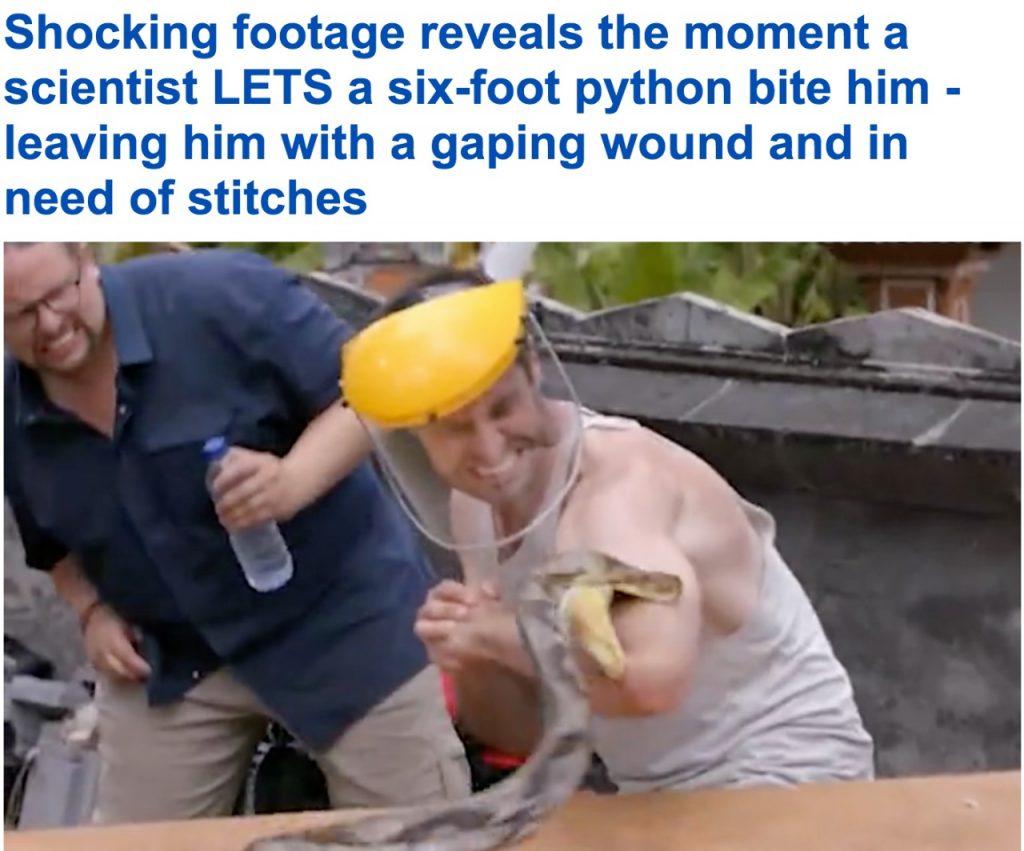 """لقطات مروعة.. شاهد: عالم يسمح لثعبان ضخم بـ""""عضه"""" مسبباً له إصابات بالغة!"""