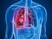 مشروب بـ «ريال» في البقالات يقي من خطر الإصابة بـ«سرطان الرئة»