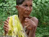 """""""لُقبت بالساحرة"""".. شاهد : امرأة هندية تُولد بـ31 إصبعًا..وهكذا يعاملها جيرانها !"""
