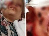 خيرها بقتلها أو قتل أطفالهما أمامها.. أردنية تكشف تفاصيل واقعة فقء عينيها بيدي زوجها