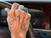 لماذا تظهر البقع البنية على أيدي كبار السن ؟