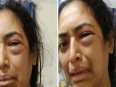 الإمارات .. بالفيديو : شاهد امرأة تستغيث من اعتداء زوجها عليها ووجهها ينزف دماً