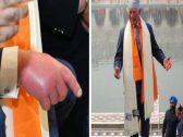 شاهد: الأمير تشارلز يثير المخاوف بعد ظهوره بيدين وقدمين منتفخة أثناء زيارته للهند!
