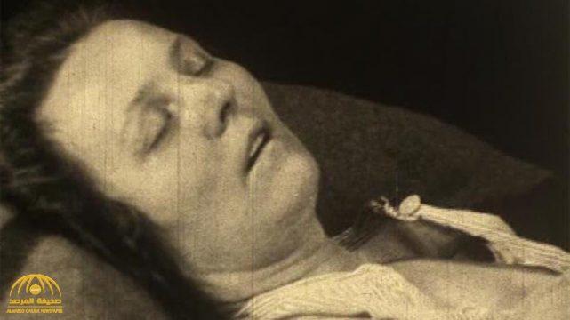 """تعرف على """"مرض النوم"""" اللغز الذي حيّر الأطباء وقتل الملايين وحول آخرين لتماثيل بشرية"""