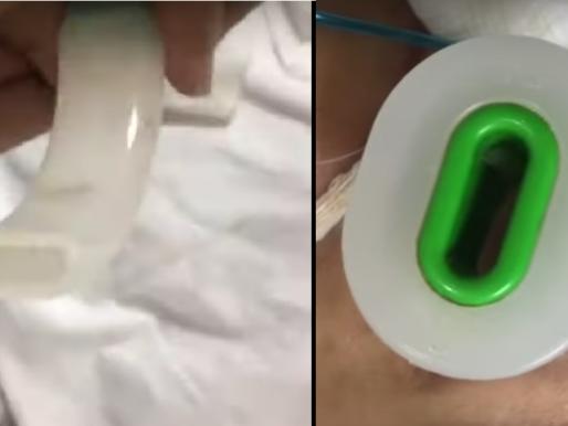 شاهد…  تداول مقطع صادم لخروج الدود من أنبوب تنفس مريضة بمستشفى عام بجدة !