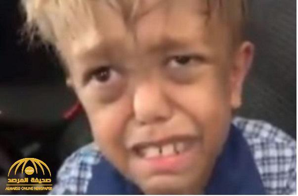 """""""طفل التقزّم"""" يحصل على """"ثروة"""""""