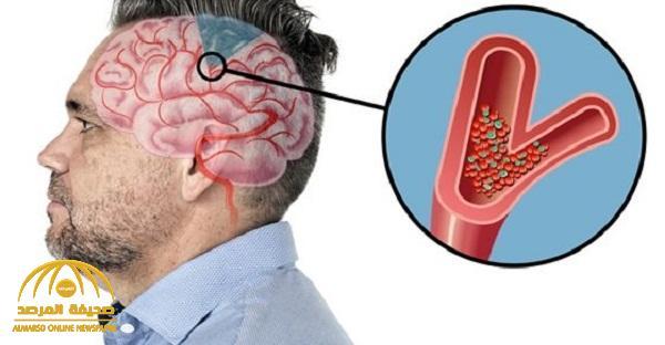 لا تتجاهلها .. علامات التحذير قبل السكتة الدماغية يمكن أن تنقذ حياتك